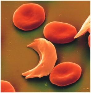 La anemia falciforme puede provocar ictus silenciosos