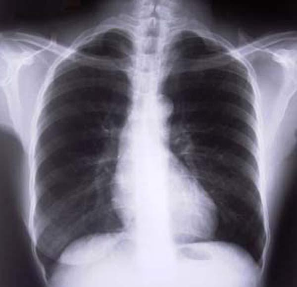 Los aparatos de rayos X: ¿Son seguros?