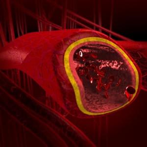 El diagnóstico de la arterioesclerosis: Una forma de combatir la enfermedad
