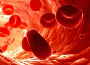Anemia de Fanconi