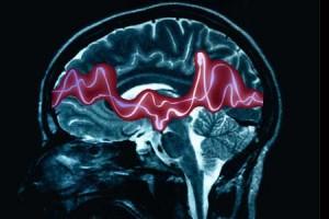 Diagnóstico de la epilepsia