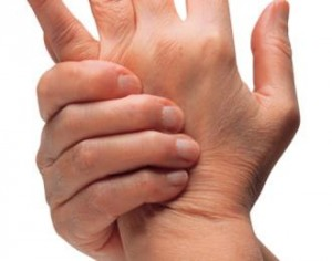 El tratamiento de la artritis gotosa y su diagnóstico