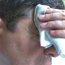 Los síntomas de la hiperhidrosis