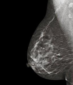 Los beneficios de la mamografía