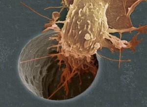 Todo sobre el cáncer: ¿Qué es y por qué se presenta?