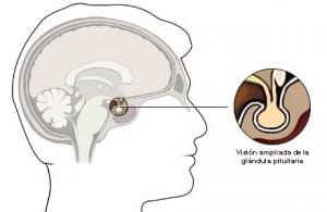 Los síntomas del hipopituitarismo