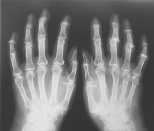 Causas de la osteoartritis: Más común en deportistas