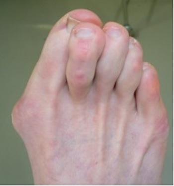 Las deformidades en los pies más usuales y sus causas