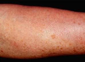 Mastocitosis: Las manchas en la piel