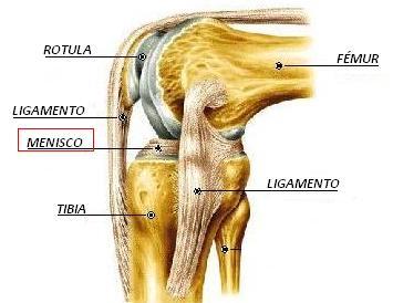 El dolor en los meniscos