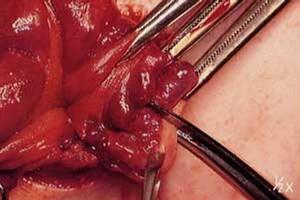 Operar las hemorroides: Técnicas novedosas