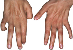 Los síntomas de la Siringomielia