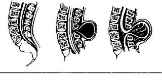 Los tipos de espina bífida