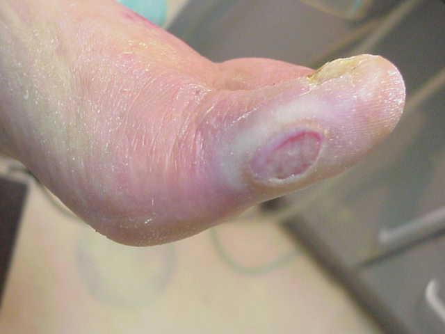 El cuidado del pie diabético para prevenir las amputaciones