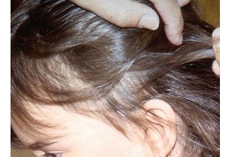 El tratamiento de la pediculosis: Creencias erróneas