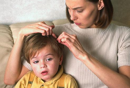 El tratamiento de la pediculosis en tres pasos