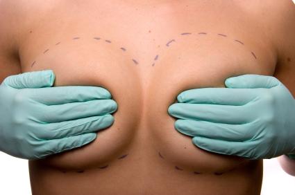 Amamantar con implantes: ¿Es posible?