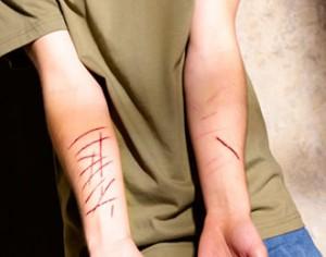 Autolesiones: Un problema común en los adolescentes