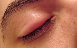 Síntomas y causas del orzuelo