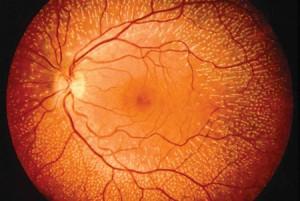 Las causas del desprendimiento de la retina