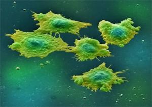 ¿Cómo evitar el cáncer?