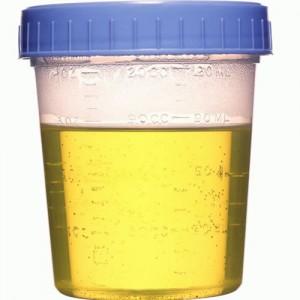 Orina con mal olor: ¿Síntoma de infección urinaria?