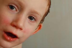 Mutaciones genéticas en el autismo