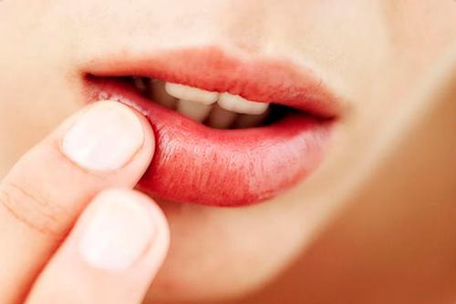 ¿Por qué se reactiva el herpes labial?