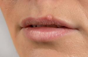 ¿El asco puede reactivar el herpes labial?