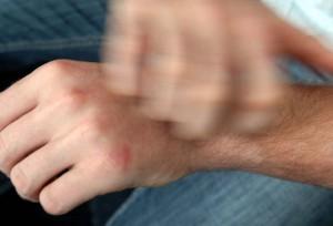 El rascado compulsivo: ¿Qué es?