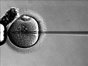 La inseminación in vitro: La oportunidad de ser padres