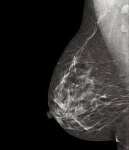 ¿Las pruebas genéticas para el cáncer de mama son eficaces?