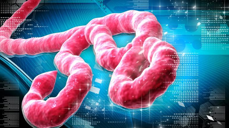 Los síntomas del ébola