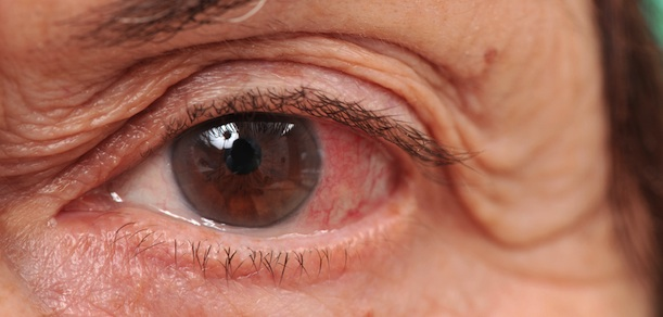 ¿Cómo cuidar tus ojos?