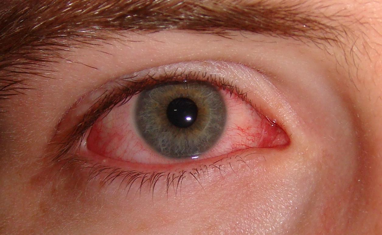 ¿Qué hacer si te salpican productos ácidos en los ojos?