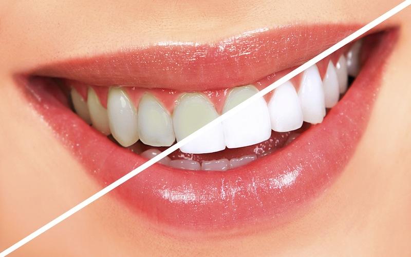 10 alimentos que amarillecen los dientes