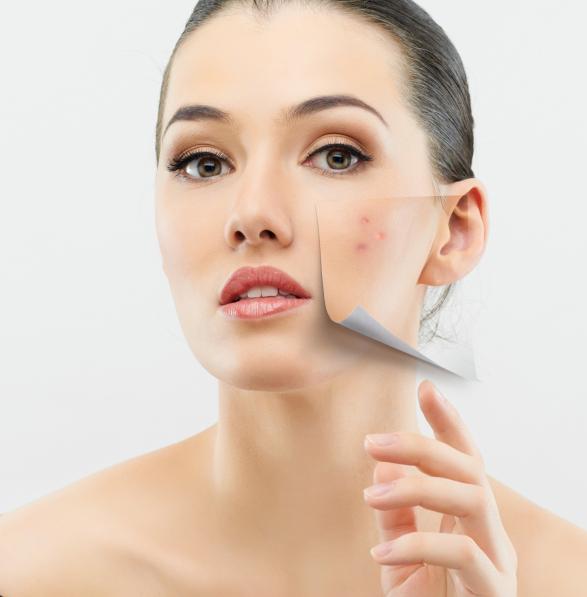 3 aparatos que usas a diario que pueden manchar tu piel