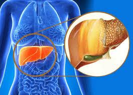 Hígado graso: ¿Qué es y por qué deberías preocuparte?